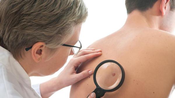 ما هي اعراض سرطان الجلد وطرق الوقاية منه ؟