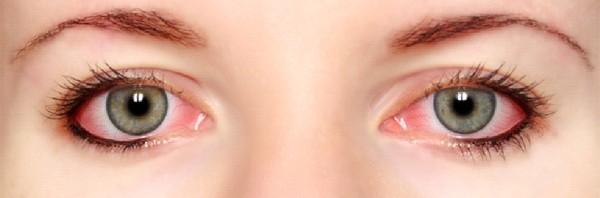 مرض التهاب العين