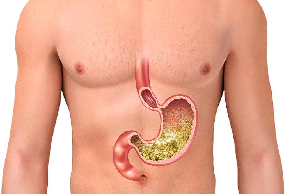 اعراض اضطرابات الجهاز الهضمي