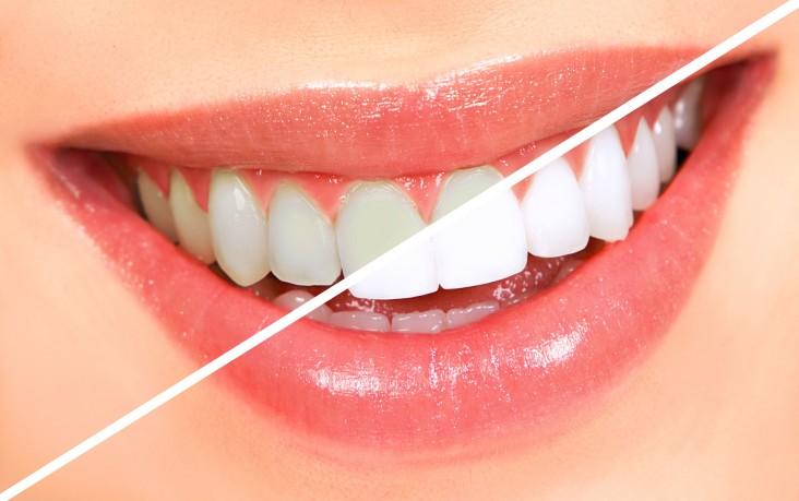 تبييض الاسنان بالكركم