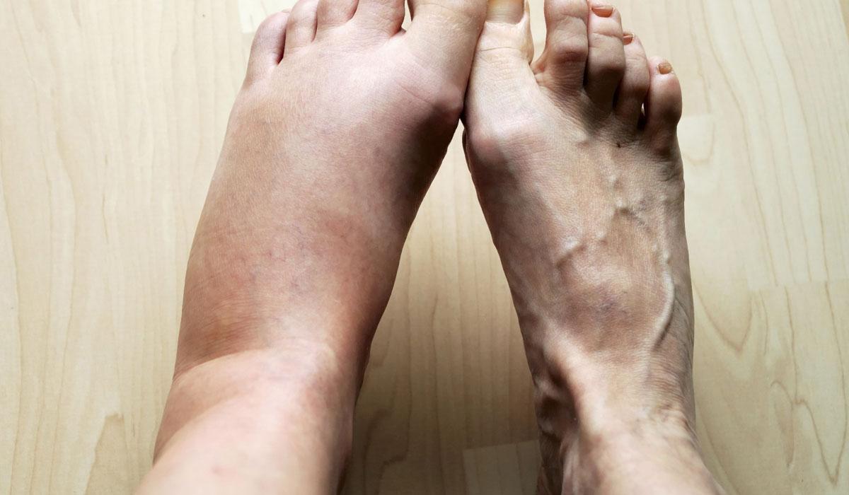تورم القدمين عند كبار السن