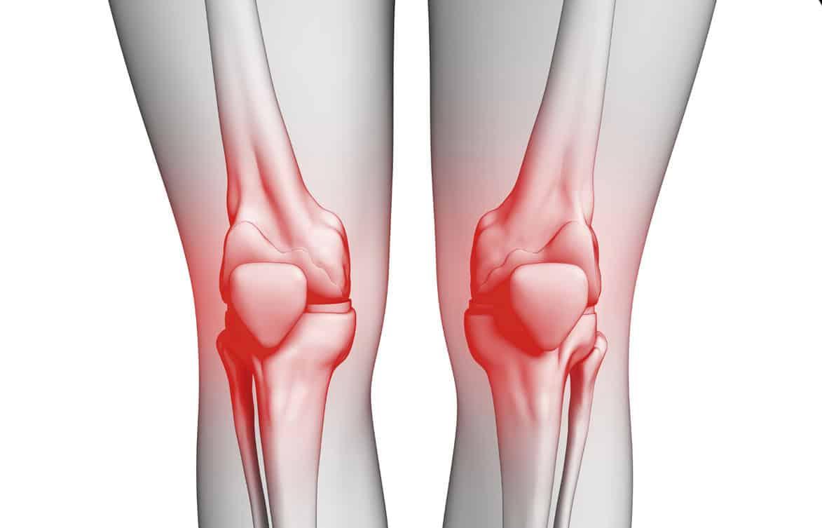 نصائح ومعلومات عن خشونة الركبة وتآكل المفاصل عند النساء