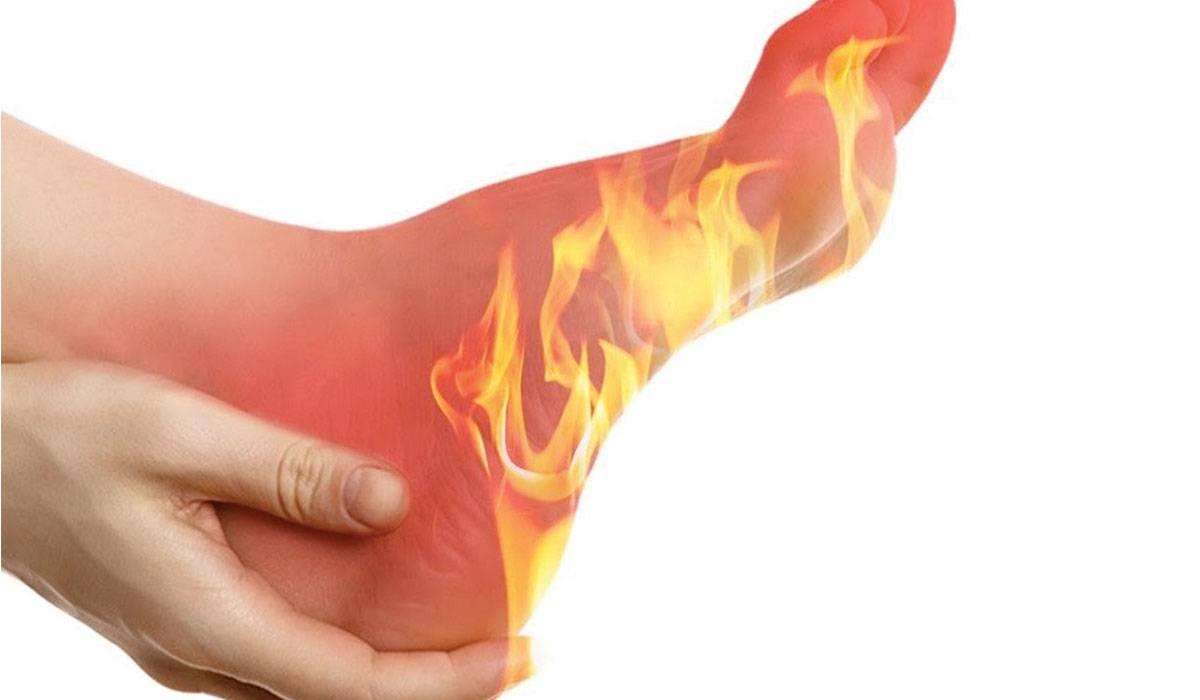 ما هي أسباب حرقة القدمين وما هي طرق علاجها