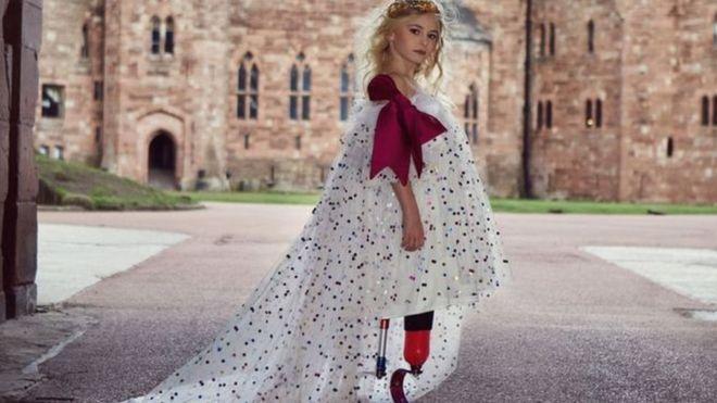ديزي ديمتيري أول عارضة أزياء مبتورة القدم