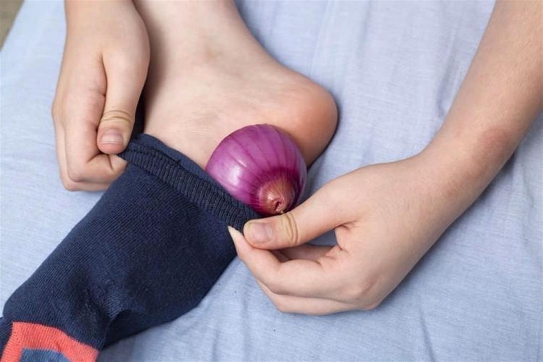 وضع البصل في الجوارب .. هل يعالج البرد والأنفلونزا؟