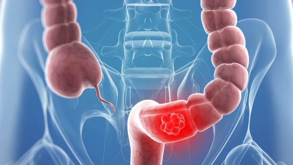 أطعمة للوقاية من سرطان القولون