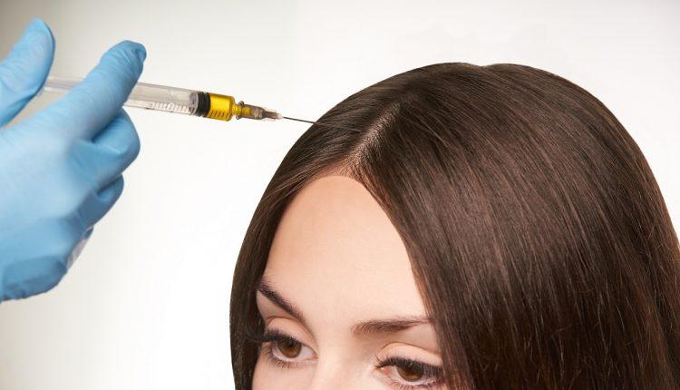 تكلفة زراعة الشعر في عيادات المغربي