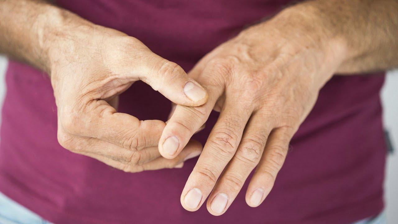 التهاب الأعصاب في اليد