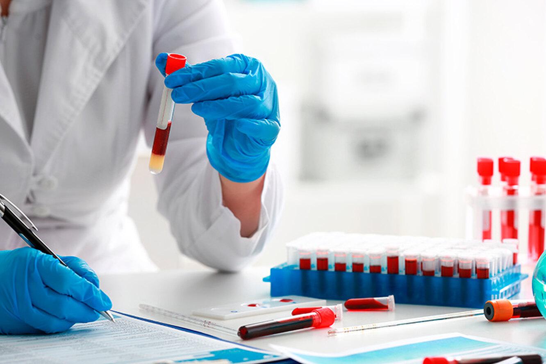 ما هو التهاب الدم الفيروسي