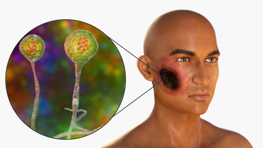 اعراض مرض الفطر الاسود واسبابه